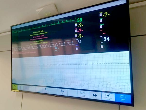 """""""Actualizaciones en la interpretación del registro cardiotocográfico, RCTG, para matronas"""". Turno tarde"""
